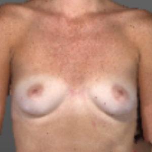 borstaugmentatie voor