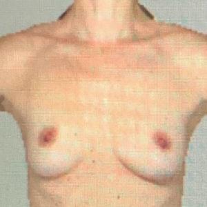 Borstreconstructie met prothesen en kunstonderhuid voor