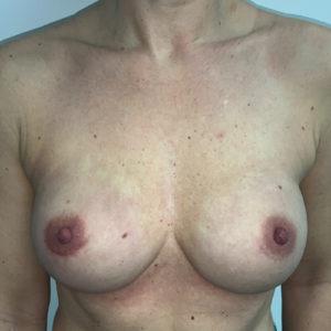 Borstreconstructie met prothesen en kunstonderhuid na